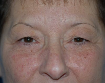 Eyelid Surgery Browlift Gallery - Patient 5952235 - Image 1