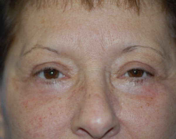 Eyelid Surgery Browlift Gallery - Patient 5952235 - Image 2