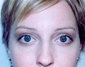 Eyelid Surgery Browlift Gallery - Patient 5952240 - Image 2