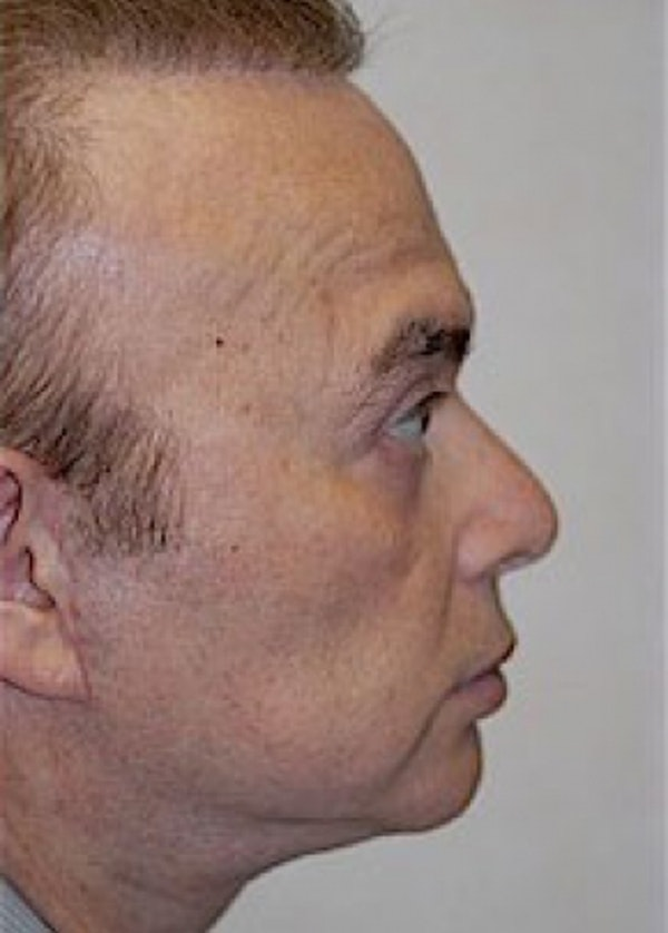 Facelift and Mini Facelift Gallery - Patient 5952241 - Image 2