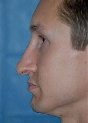Rhinoplasty Gallery - Patient 5952244 - Image 1