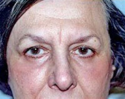 Eyelid Surgery Browlift Gallery - Patient 5952243 - Image 2