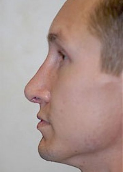 Rhinoplasty Gallery - Patient 5952244 - Image 2