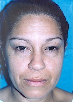 Eyelid Surgery Browlift Gallery - Patient 5952245 - Image 1