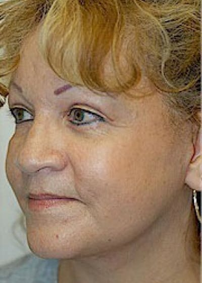Facelift and Mini Facelift Gallery - Patient 5952246 - Image 4