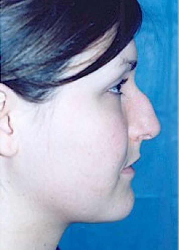 Rhinoplasty Gallery - Patient 5952247 - Image 3