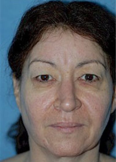 Eyelid Surgery Browlift Gallery - Patient 5952248 - Image 1