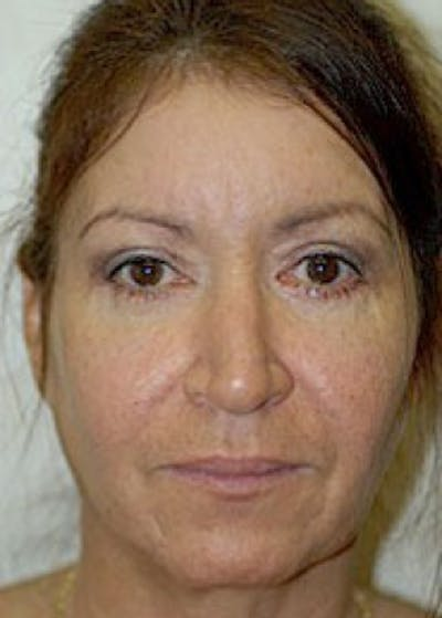 Eyelid Surgery Browlift Gallery - Patient 5952248 - Image 2