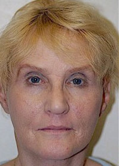 Facelift and Mini Facelift Gallery - Patient 5952249 - Image 2