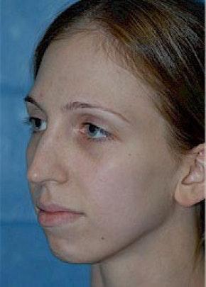 Rhinoplasty Gallery - Patient 5952250 - Image 1