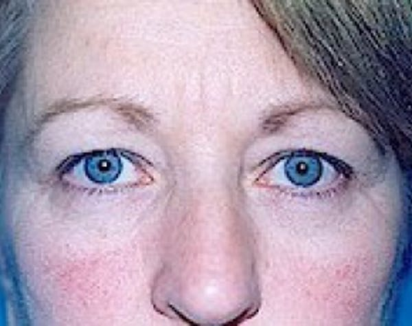 Eyelid Surgery Browlift Gallery - Patient 5952251 - Image 1