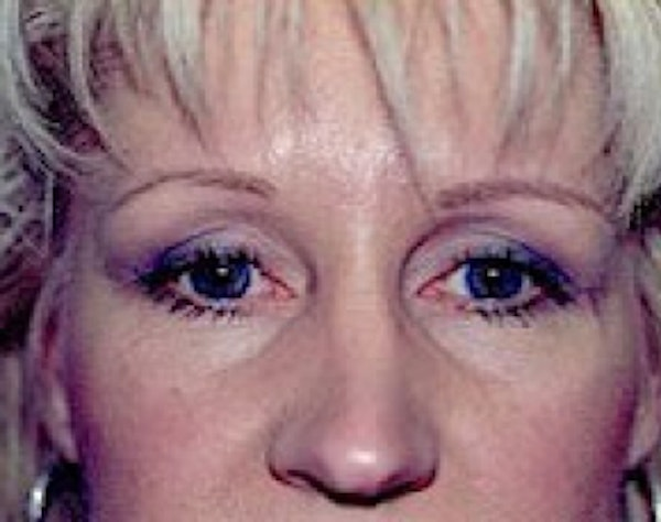 Eyelid Surgery Browlift Gallery - Patient 5952256 - Image 2