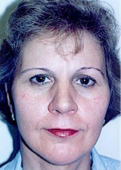 Facelift and Mini Facelift Gallery - Patient 5952258 - Image 61