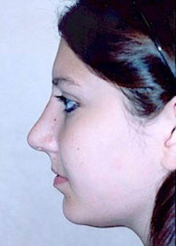 Rhinoplasty Gallery - Patient 5952257 - Image 2