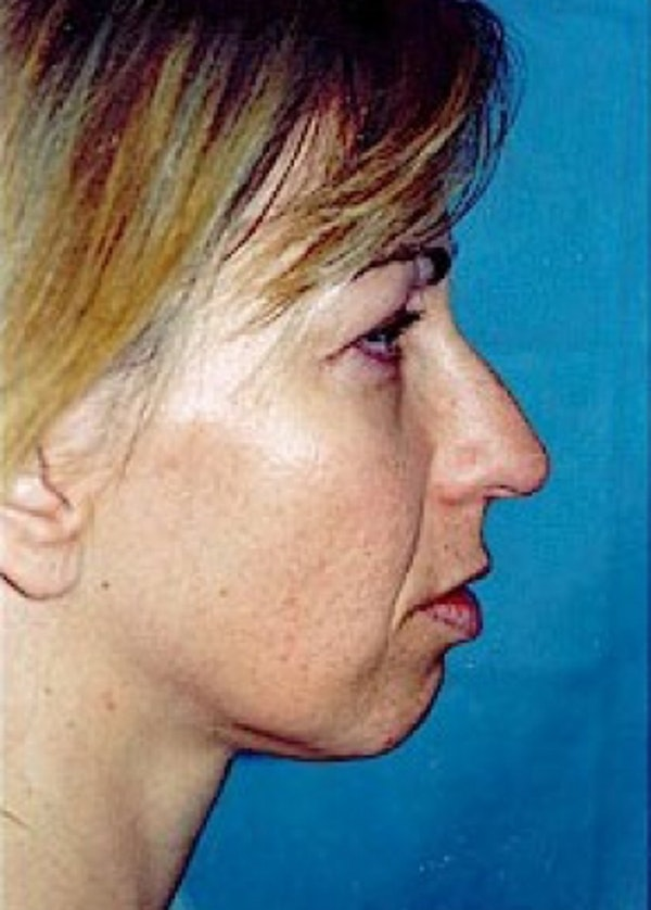 Rhinoplasty Gallery - Patient 5952260 - Image 1