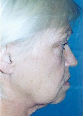 Facelift and Mini Facelift Gallery - Patient 5952261 - Image 1