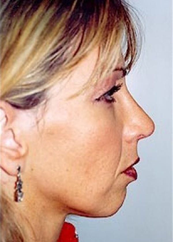 Rhinoplasty Gallery - Patient 5952260 - Image 2