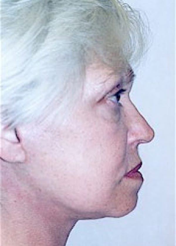 Facelift and Mini Facelift Gallery - Patient 5952261 - Image 2