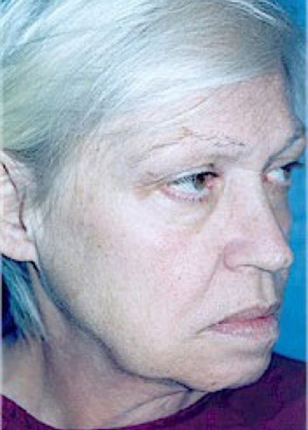 Facelift and Mini Facelift Gallery - Patient 5952261 - Image 3