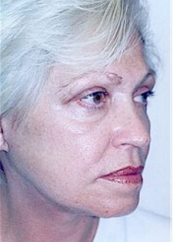 Facelift and Mini Facelift Gallery - Patient 5952261 - Image 4