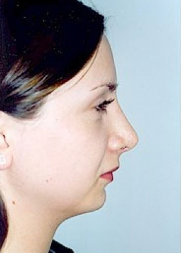 Rhinoplasty Gallery - Patient 5952268 - Image 2