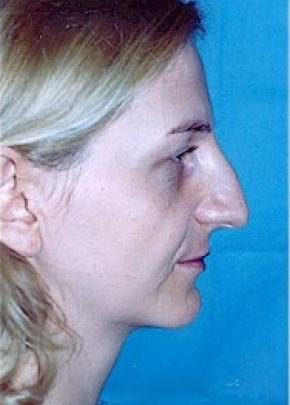 Rhinoplasty Gallery - Patient 5952269 - Image 1