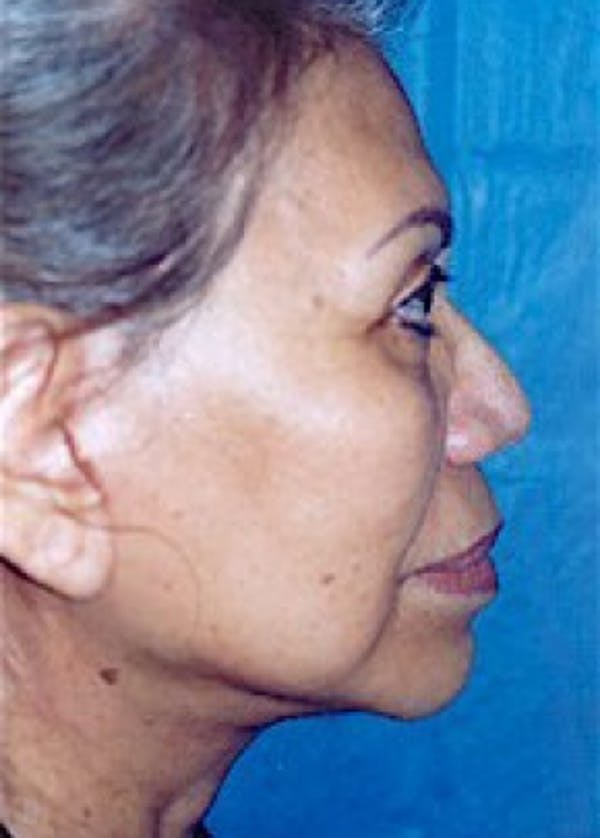 Facelift and Mini Facelift Gallery - Patient 5952270 - Image 2