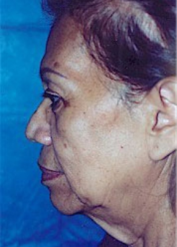 Facelift and Mini Facelift Gallery - Patient 5952270 - Image 3