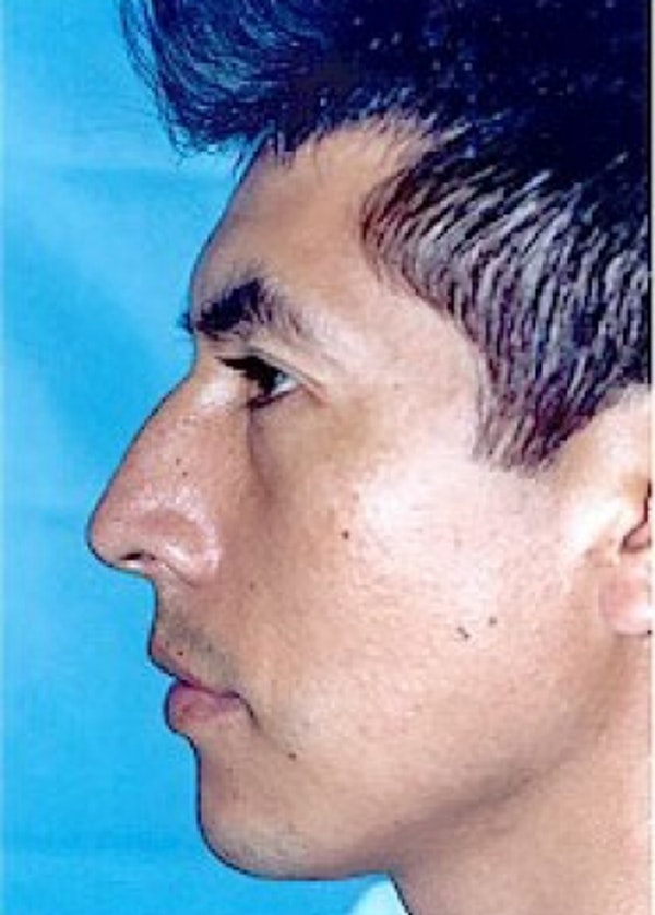 Rhinoplasty Gallery - Patient 5952272 - Image 1