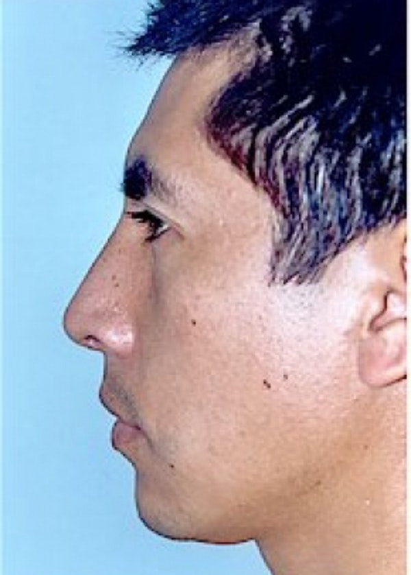 Rhinoplasty Gallery - Patient 5952272 - Image 2