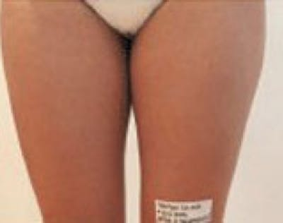 Mesotherapy Gallery - Patient 5952278 - Image 2