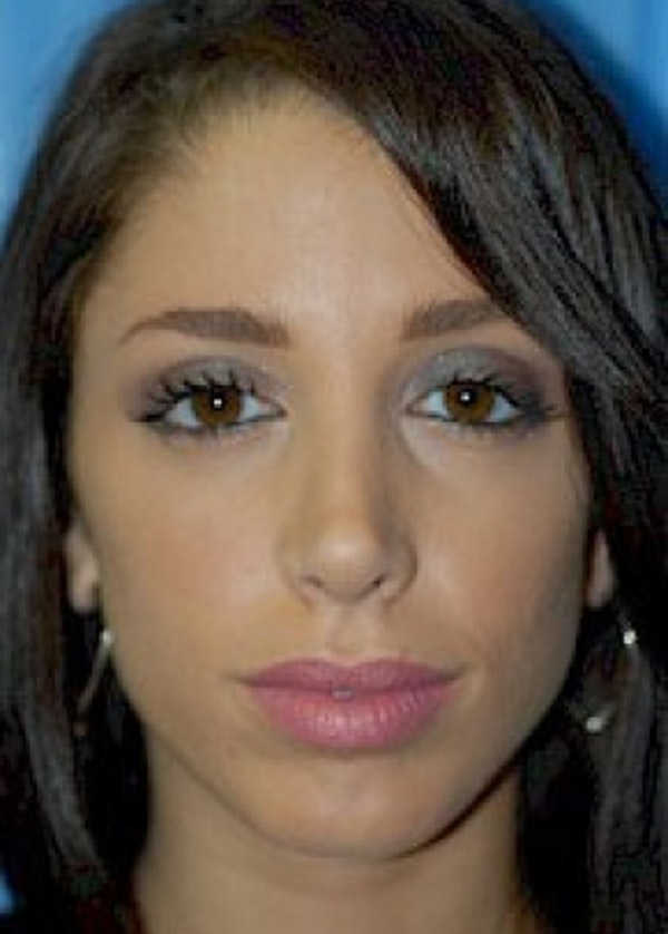 Rhinoplasty Gallery - Patient 5952310 - Image 2