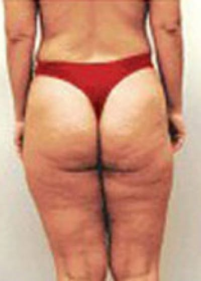 Mesotherapy Gallery - Patient 5952296 - Image 1