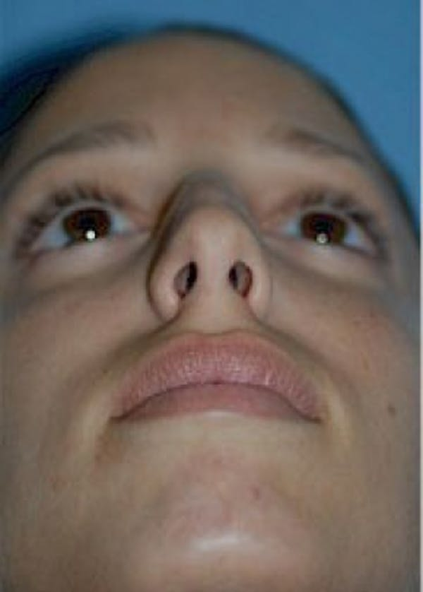 Rhinoplasty Gallery - Patient 5952310 - Image 3