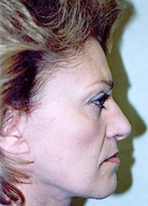 Facelift and Mini Facelift Gallery - Patient 5952377 - Image 2