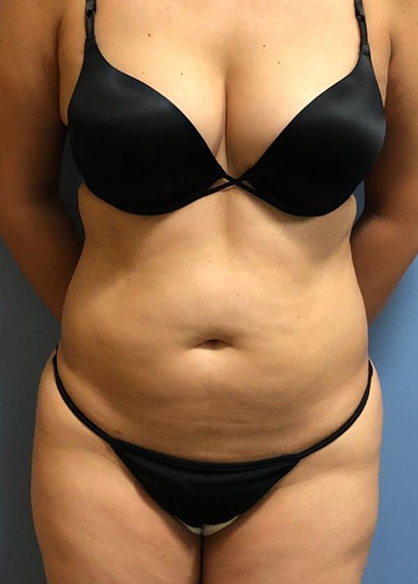 Brazilian Butt Lift Gallery - Patient 11203283 - Image 3