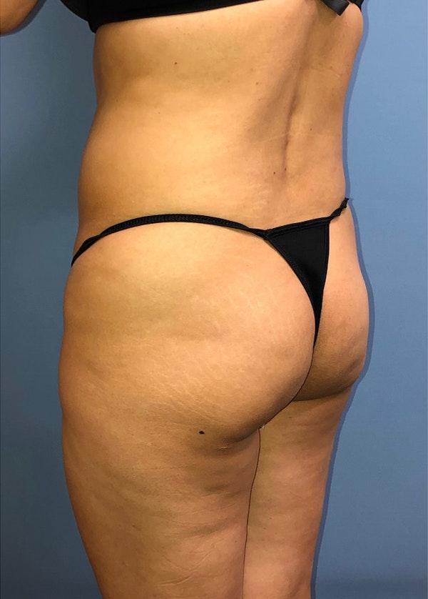 Brazilian Butt Lift Gallery - Patient 11203283 - Image 1
