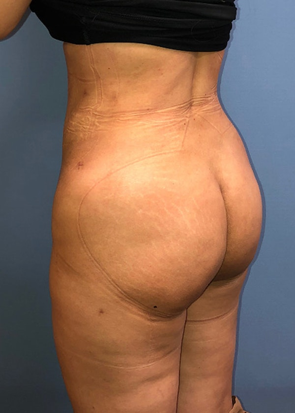 Brazilian Butt Lift Gallery - Patient 11203283 - Image 2