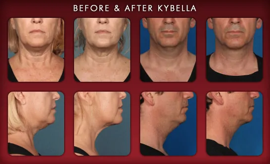 Before and after Kybella treatments in Palo Alto at Hessler Plastic Surgery