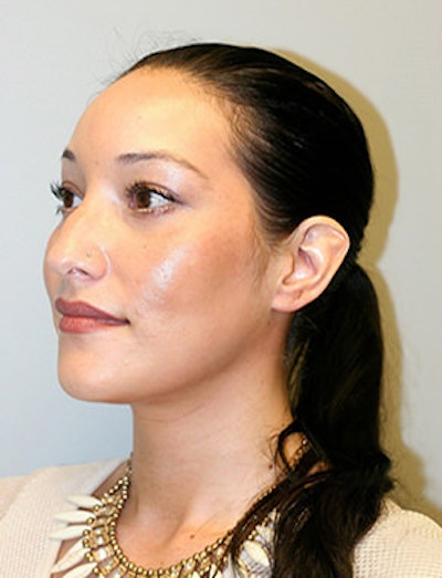 Blepharoplasty Gallery - Patient 12059161 - Image 4