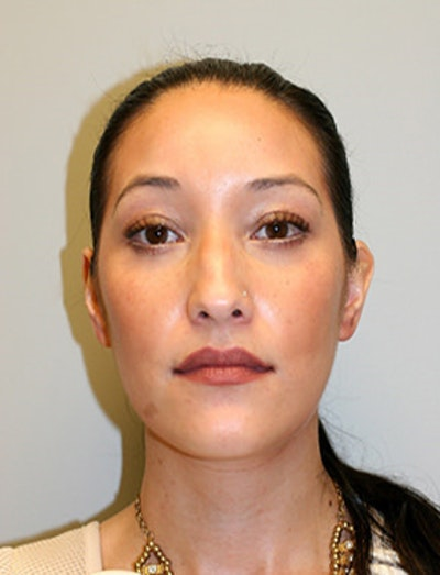 Blepharoplasty Gallery - Patient 12059161 - Image 2