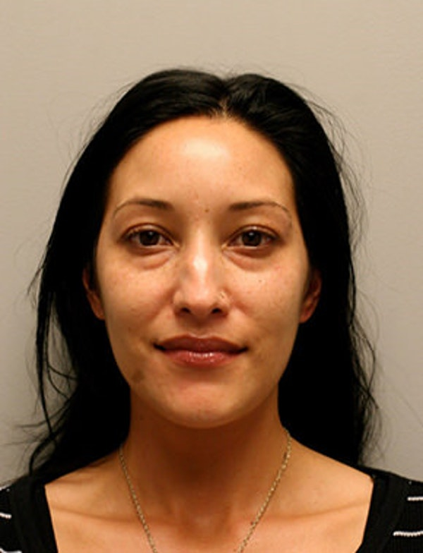 Blepharoplasty Gallery - Patient 12059161 - Image 1