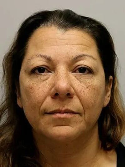 Blepharoplasty Gallery - Patient 12059162 - Image 1
