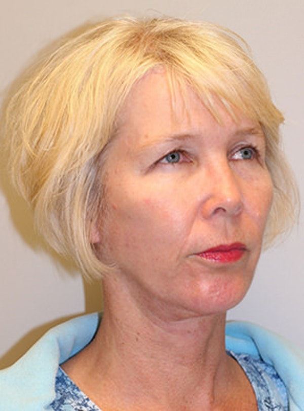 Chin Implant Gallery - Patient 12059264 - Image 4