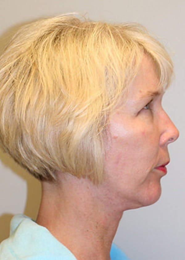 Facelift Gallery - Patient 12059269 - Image 6
