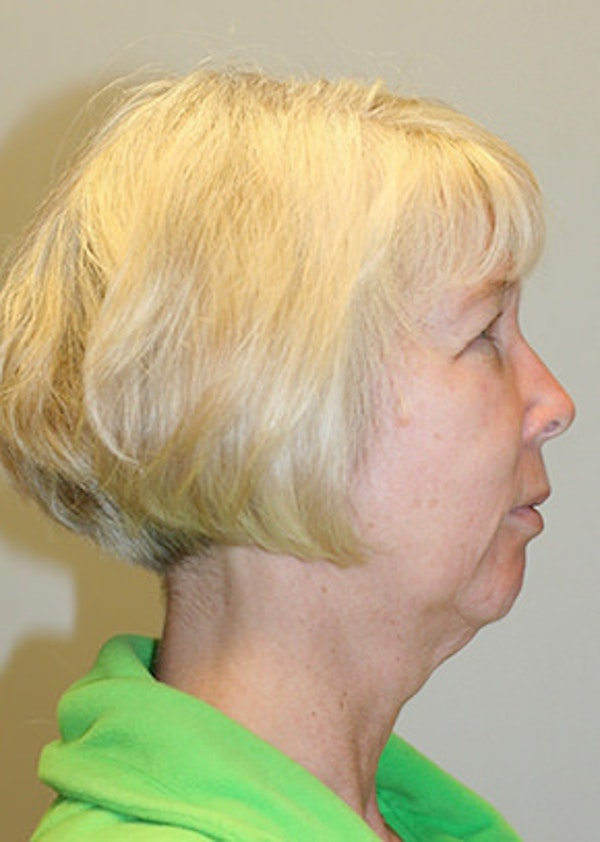 Chin Implant Gallery - Patient 12059264 - Image 5