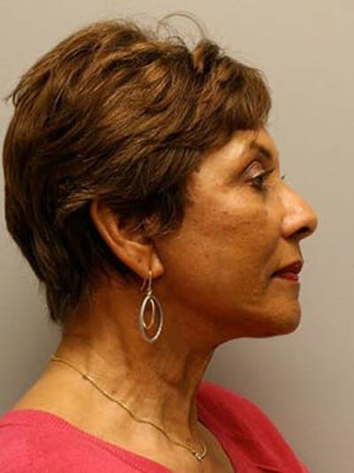Facelift Gallery - Patient 12059300 - Image 4