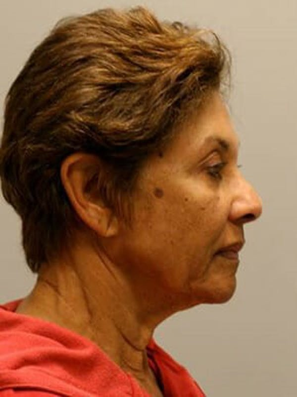 Facelift Gallery - Patient 12059300 - Image 3