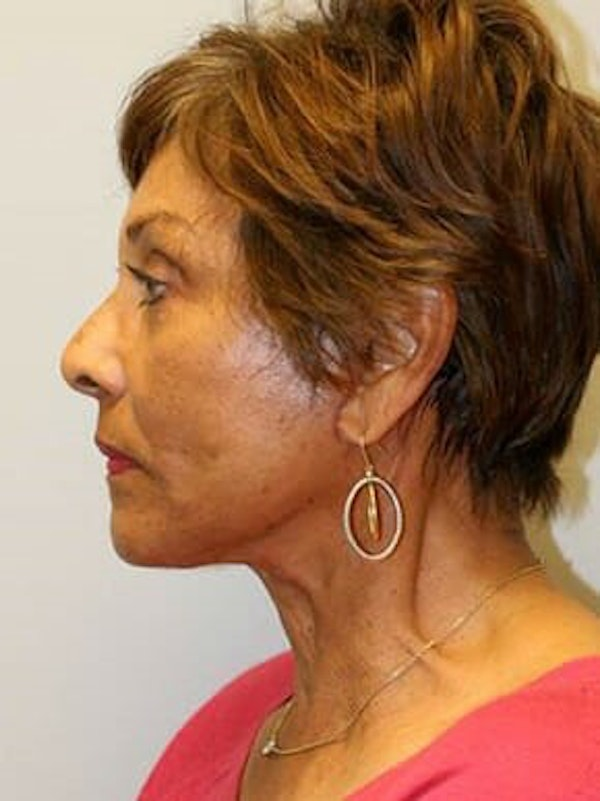 Facelift Gallery - Patient 12059300 - Image 6