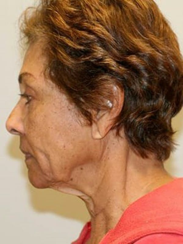 Facelift Gallery - Patient 12059300 - Image 5